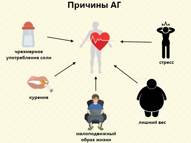 2 степень артериальной гипертензии: причины, диагностика и лечение