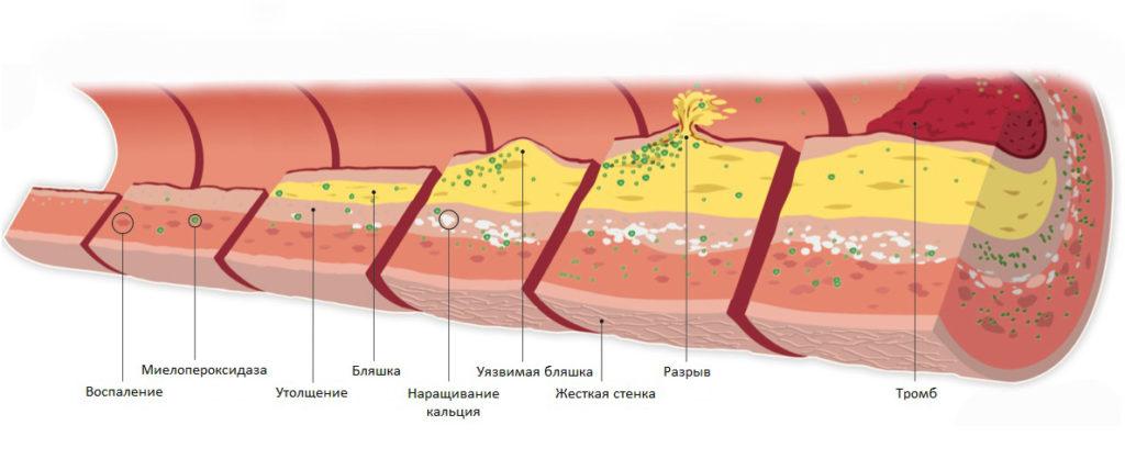 Атеросклероз: что это такое, причины, симптомы, диагностика и лечение