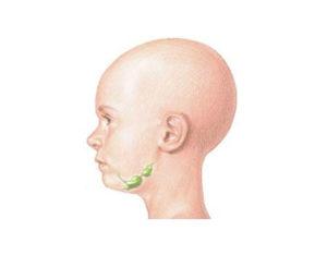 Болезнь Т. Ходжкина (лимфогранулематоз): причины, симптомы и лечение