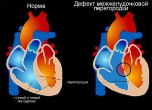 Дефекты межжелудочковой перегородки: симптомы, причины и лечение