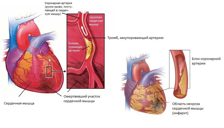 Все об инфаркте миокарда: причины, симптомы, диагностика и первая помощь