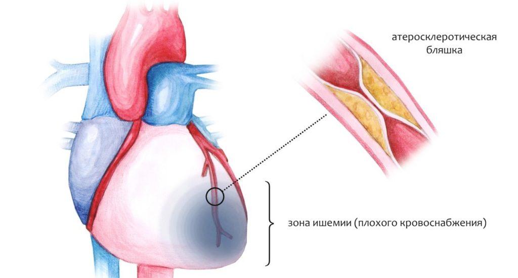 Ишемические болезни сердца: причины, симптомы, диагностика и лечение