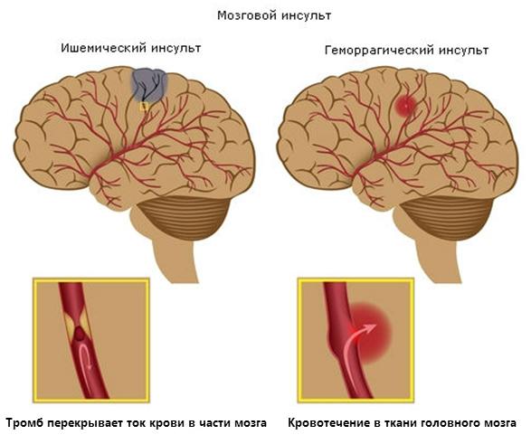 Инсульт: виды, лечение и последующая реабилитация