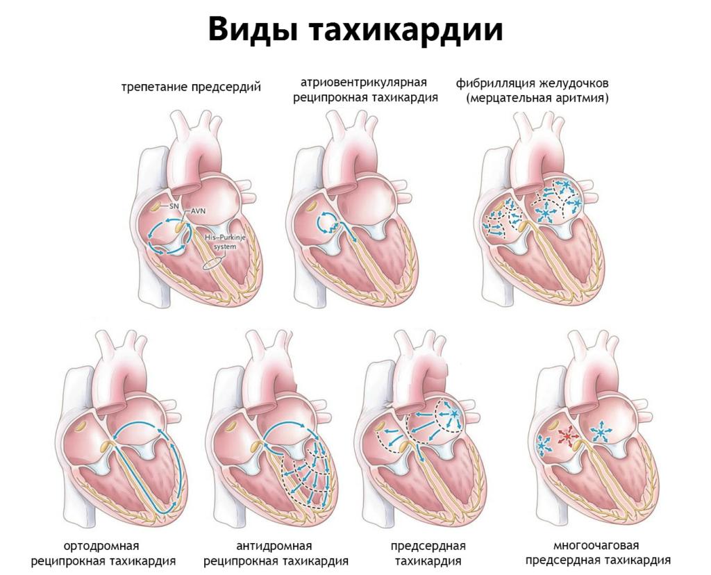 Лечение тахикардии сердца: список препаратов