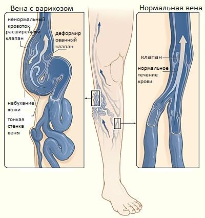 Методы лечения варикоза, возможные причины и симптомы заболевания
