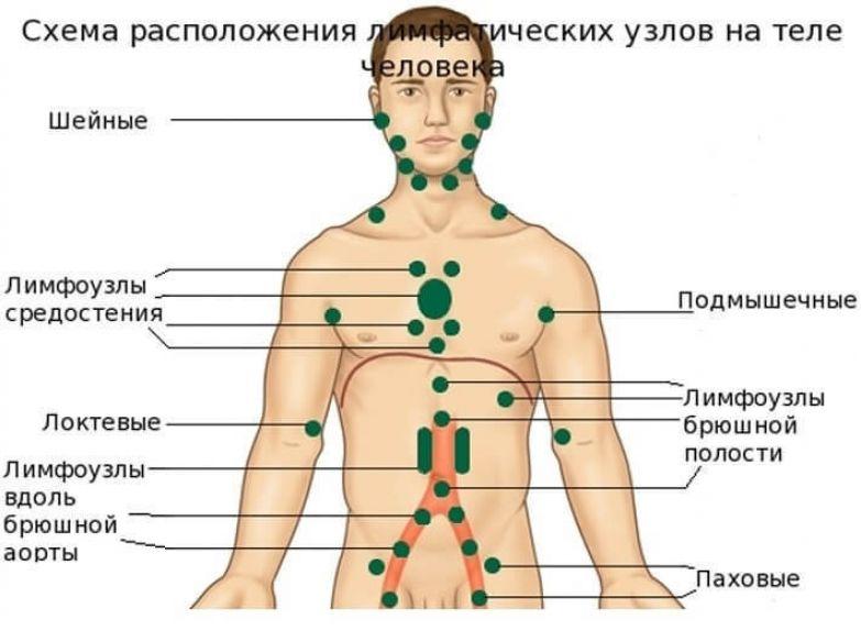 Лимфаденит — что это, классификация, причины, симптомы и лечение