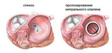 Митральные пороки сердца: виды, причины, диагностика и лечение