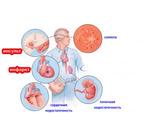 Поражение органов мишеней при гипертонической болезни ...