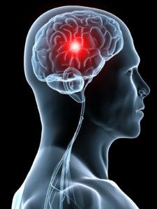 Первые признаки и симптомы микроинсульта у мужчин и женщин