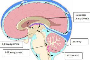 Все о внутричерепной гипертензии: причины, симптомы, диагностика и лечение